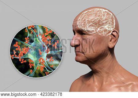 Anti-neuronal Antibodies In Neuredegenerative Diseases And Dementia. Conceptual 3d Illustration Show
