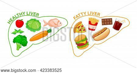 Healthy And Unhealthy Food In Shape Of Human Liver. Fatty Liver Awareness Concept.  Vector Illustrat
