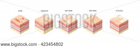 Set Different Types Skin Layers Cross-section Of Human Skin Structure Skincare Medical Concept Flat