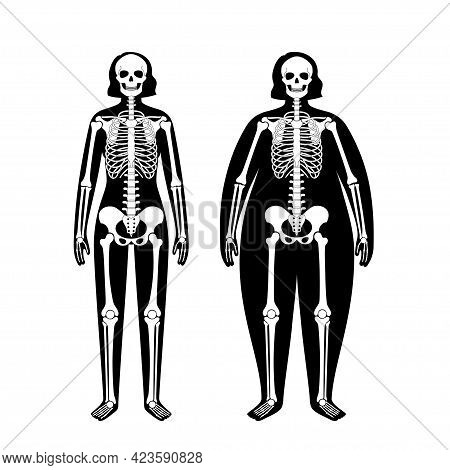 Skeleton System Human Bones Concept. X Ray With Overweight And Normal Female Silhouette. Skull, Arms
