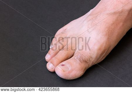 Small Purple Bruise Under Toenail On Black Background Close-up. Young Man Toe Hematoma After Running