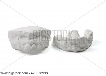 Cast Gypsum Model Plaster For Dental Molar Teeth Before Braces In Laboratory Isolated On White Backg