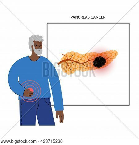 Pancreatic Cancer Logo, Pancreas Disease. Medical Appointment And Treatment In Clinic. Tumor, Pain A