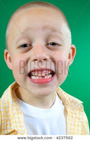Kid Missing Tooth