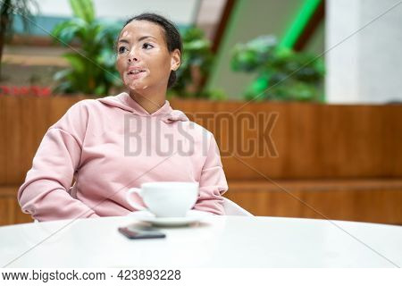 Black African American Woman With Vitiligo Pigmentation Skin Problem Indoor Dressed Pink Hoodie