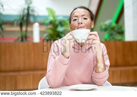 Black African American Woman With Vitiligo Pigmentation Skin Problem Indoor Dressed Pink Hoodie Drin