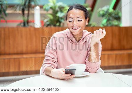 Black African American Woman With Vitiligo Pigmentation Skin Problem Indoor Dressed Pink Hoodie Sitt