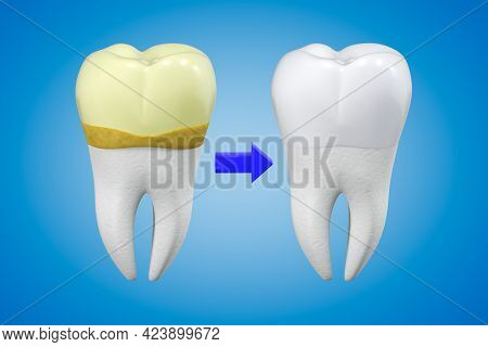 The Concept Of Professional Tooth Cleaning. A Tooth With Yellow Plaque And Calculus And A White Toot