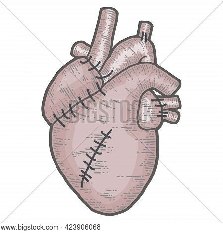 Human Heart With Stitches Isolated On White Background. Sketch Scratch Board Imitation Color.