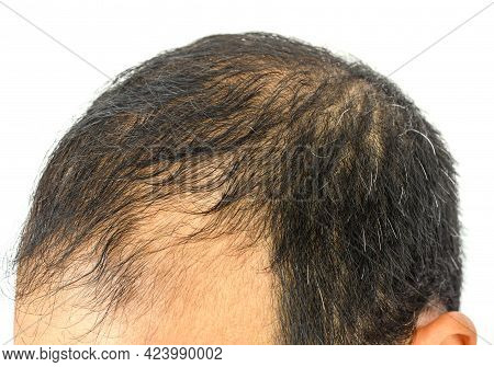 Close Up Of Male-pattern Baldness Typically Appears First At The Hairline Or Top Of The Head. It Can
