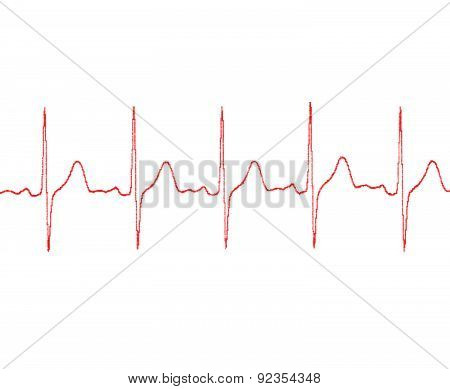 Cardiogram On A White Background