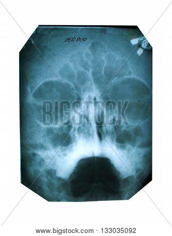 X-ray Skull Photography