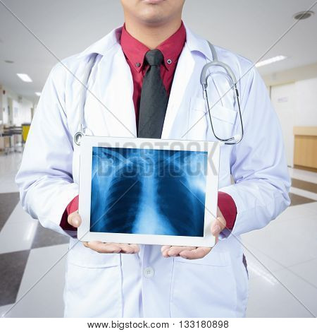 Doctor holding tablet computer with normal male chest x-ray image