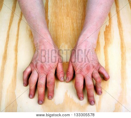 Woman rheumatoid arthritis deformed, hands. Wooden background