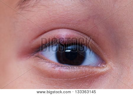 Close up right upper eye lid abscess, stye or hordeolum
