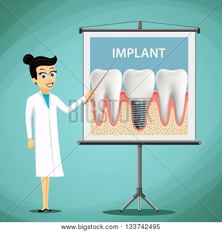 Woman dentist showing a poster with tooth implant. Dental treatment. Stock vector illustration.