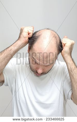 Middle Age Man Pulling Hair Baldness Problem