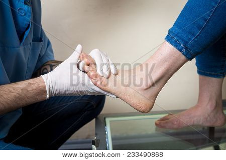 The Hands Of A Young Man Doctor Orthopedist Conducts Diagnostics, Foot Foot Test Of A Woman, For The