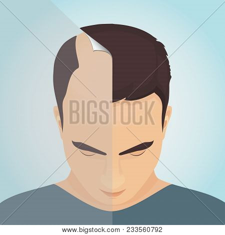 Top View Portrait Of A Man Before And After Hair Treatment And Transplantation. Divided Image Of The