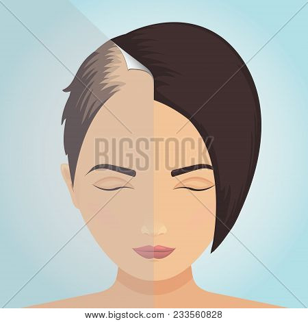 Front View Of A Balding Woman Before And After Hair Treatment. Divided Image Of The Head. Two Halves
