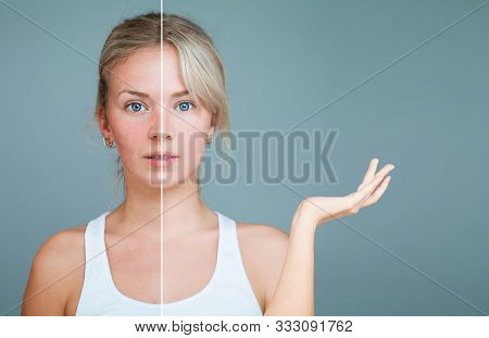 Young Woman With Hand Raised. Unhealthy And Healthy Skin After Treatment. Facial Treatment, Medicine