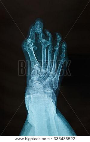 X-ray Of The Right Foot. Transverse Plane Deviation, Crossover Second Toe Deformity. Transverse Plan