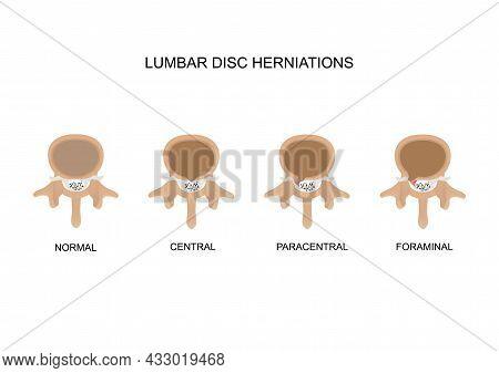 Vector Illustration Three Types Of Lumbar Intervertebral Disc Herniation