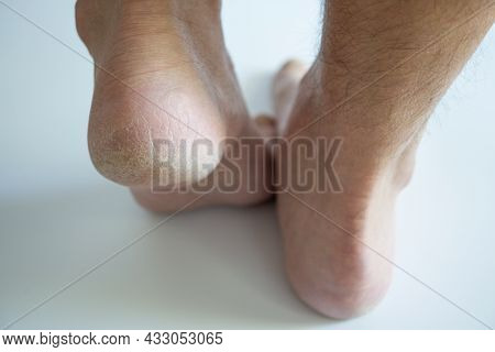 Dry Feet Heels Of Young Male Close Up - Cornea Skin - Dry Men Feet On White Background - Calluses Ca