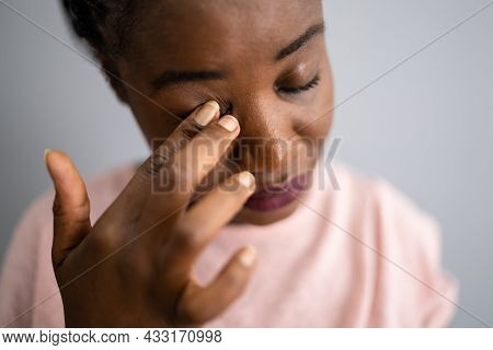 Eye Pain And Spasm Symptoms. Girl Face With Itching