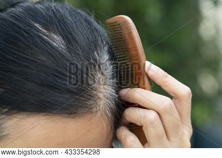 Close Up Young Woman Shows Her Gray Hair Roots
