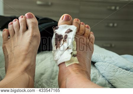 Bloody Bandages On A Foot With Stiches After A Bunion Surgery