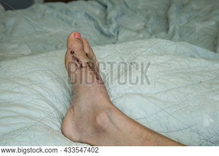 Stitches Removed And Foot Elevated After Bunion Surgery On A Bed.