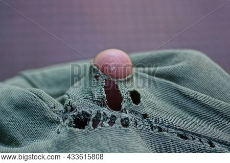 One Brown Finger In A Hole In Torn Green Fabric Of Old Clothes