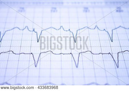 Close-up Of An Ekg Tracing Of A Patient With A Cardiac Pacemaker. Pacemaker Beats Recorded On Paper.