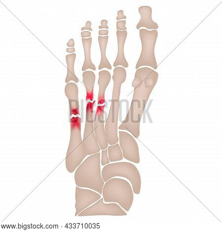 Fracture Of The Metatarsal Bones In The Foot. Anatomical Structure Of The Foot. Skeleton. Broken Bon