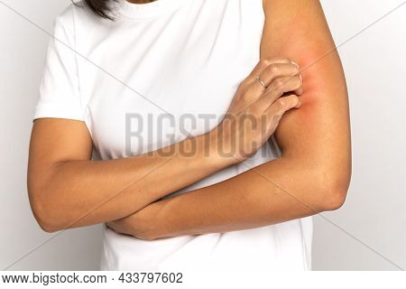 Close Up Of Woman Scratching Itch On Hand, Suffer From Dry Skin Or Pruritus Isolated On Studio Grey
