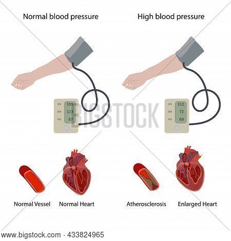 Normal, Enlarged Heart, Cardiomegaly, Atherosclerosis. A Hand And A Tonometer With Hypertension, Hig