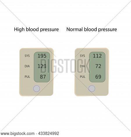 Hypertension, Normal And High Blood Pressure. Tonometer. Flat Vector Medical Illustration.