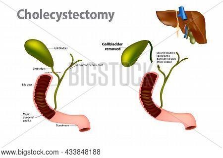 Gallbladder Removal Surgery. Laparoscopic Cholecystectomy. Gallbladder Problems