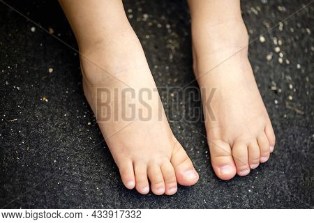 Close Up To The Child's Feet Isolated On Black Background And Copy Space.