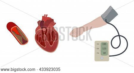 A Hand And A Tonometer With Hypertension, High Blood Pressure. Atherosclerosis Causes Enlarged Heart