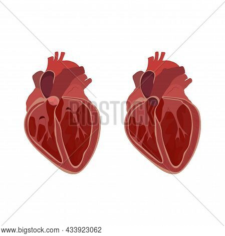Internal Inside Structure Of The Heart. Pulmonary Valve Opened And Closed. Vector Flat Anatomy Medic