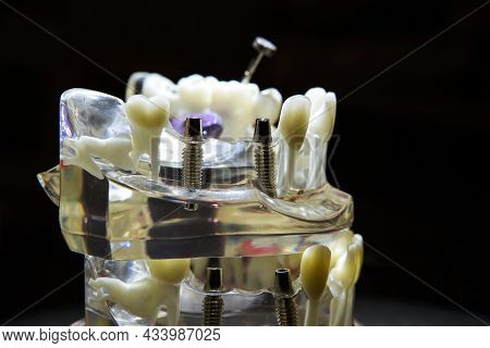 Dental Implants Made Of Titanium. The Layout Of The Plastic Jaw With Teeth. Modern Prosthetics In A