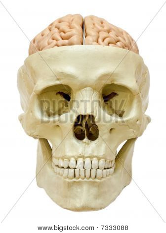 Skull with visible brain