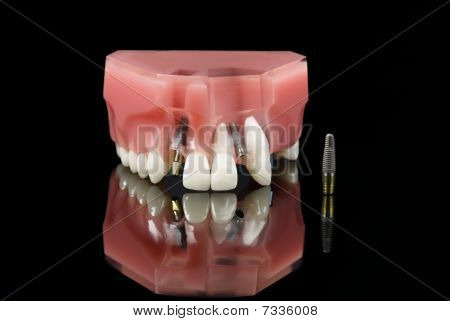 Wisdom Tooth, Dental Implant And Teeth Model