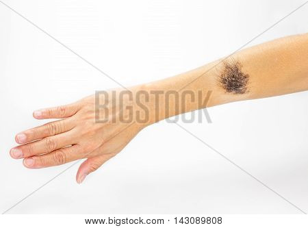 Black Birthmark On Arm On White Background