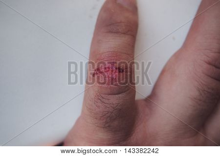 Trauma thumb. The fresh wound on his little finger. poster