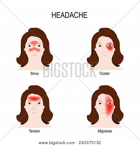 Type Of Headaches: Sinus (result From Sinus Infections), Cluster (short Episodes Of Severe Pain), Te