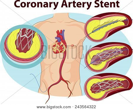 Vector Illustration Of Coronary Artery Stent Graphic