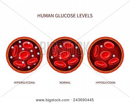 Human Glucose Levels Hyperglycemia, Normal, Hypoglycemia. Hematology Vector Diagram With Blood Vesse